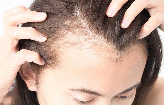 Как справиться с выпадением волос в подростковом возрасте? Советы родителям, как помочь своему ребенку