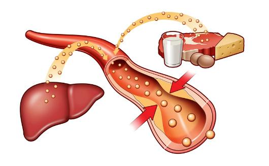 Как эффективно снизить холестерин? Самые надежные средства для вашего здоровья