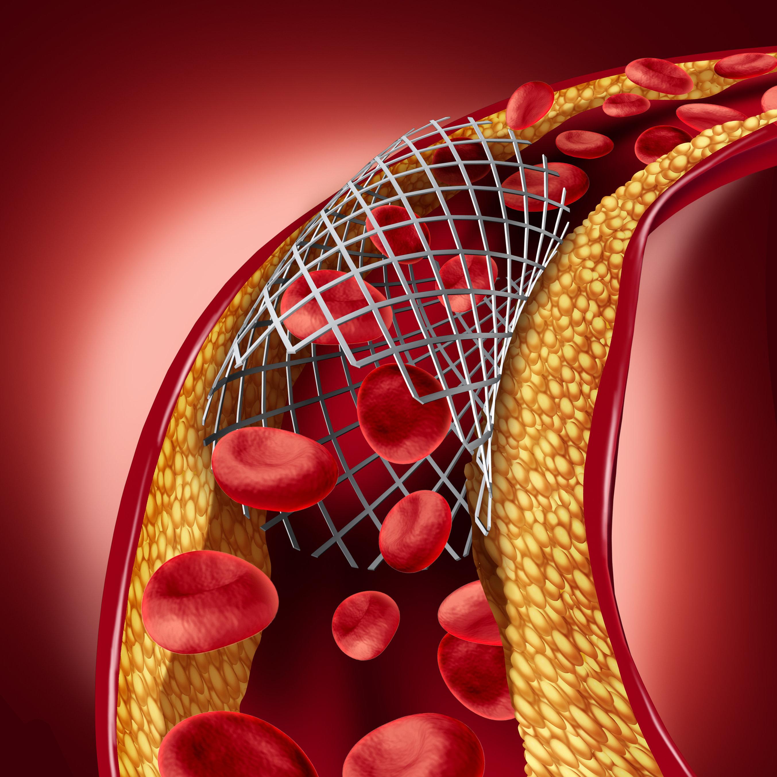 Как альфа-холестерин помогает бороться с заболеваниями сердца и сосудов