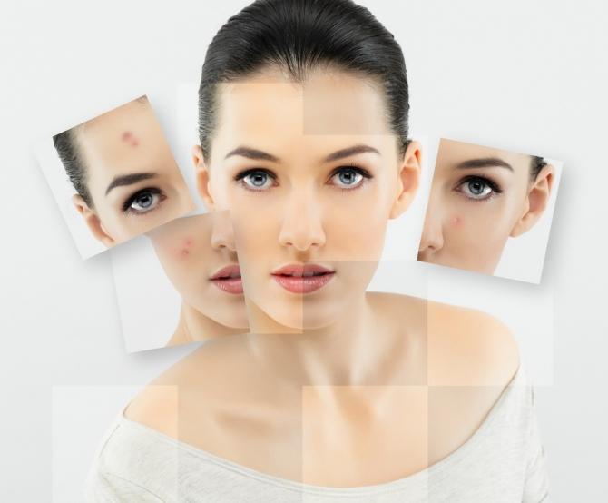 Секреты и тонкости ухода за комбинированным типом кожи