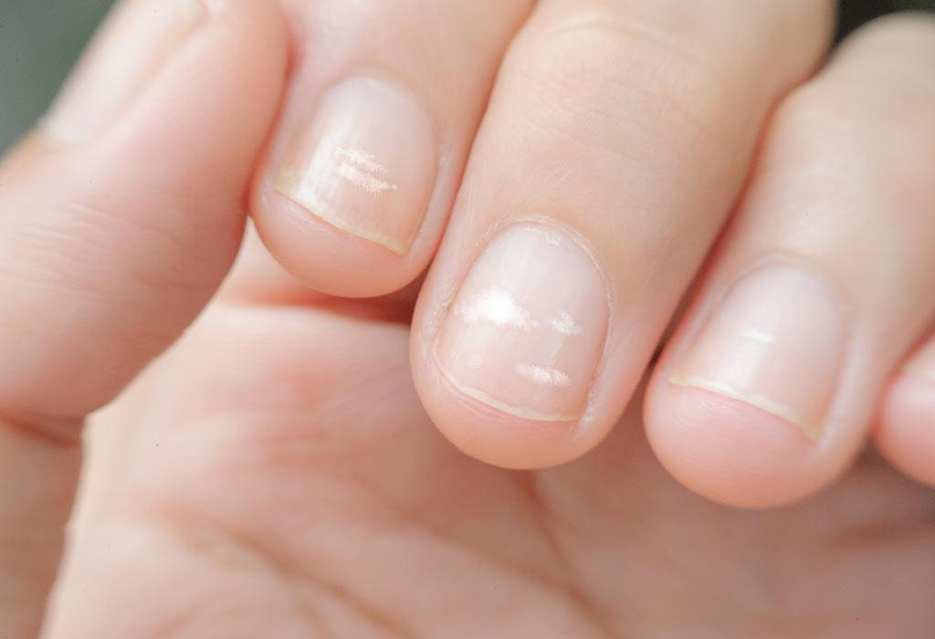Стоит ли бояться белых пятен на ногтях?