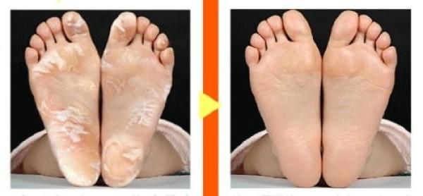 Пилинг - носочки Cosme Baby Foot глубокого действия